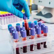 MCH e test emocromo: trattamento MCH alto e basso